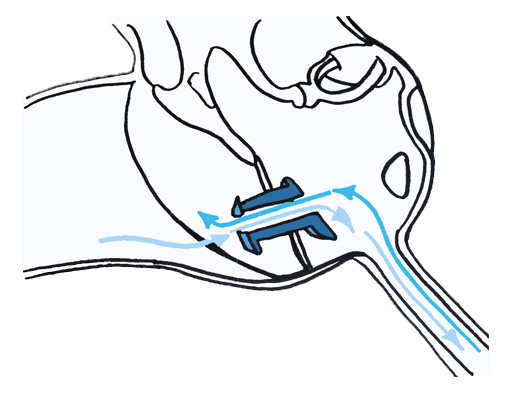 drain-trans-tympanique